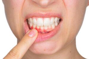 tratament parodontoza Craiova