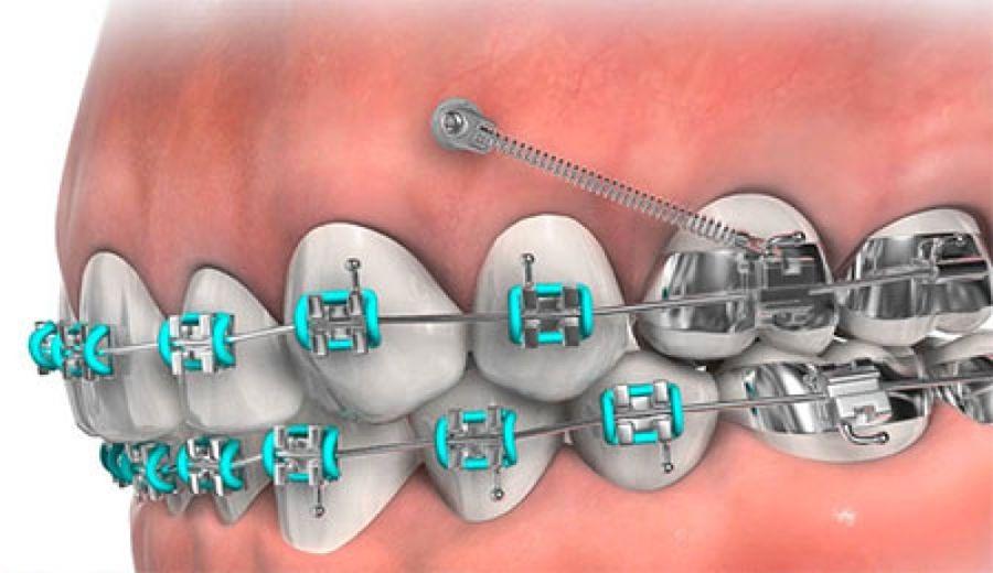 tratamente ortodontice Craiova