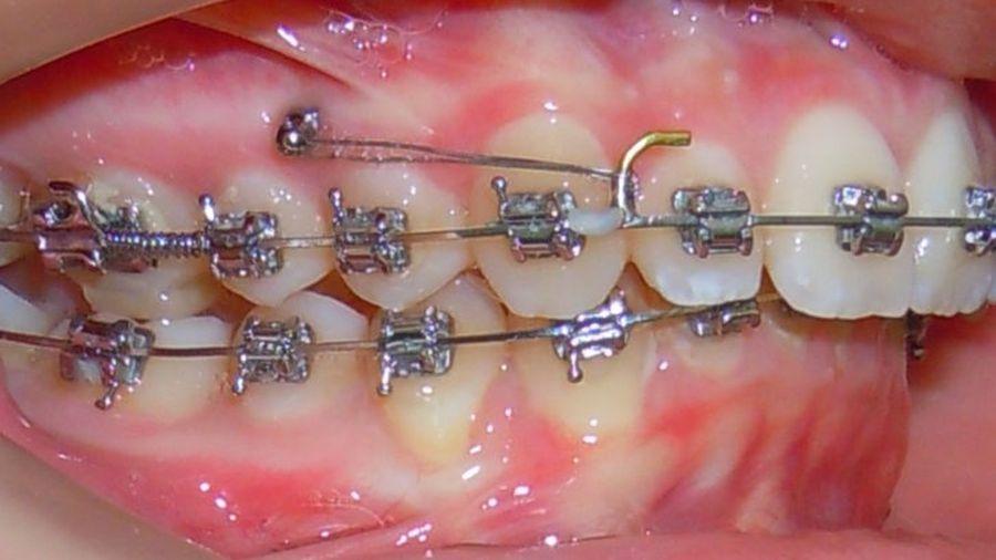 ortodontie Craiova