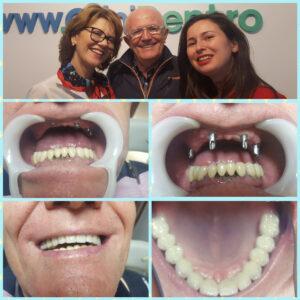 reabilitare totala maxilar prin implanturi dentare