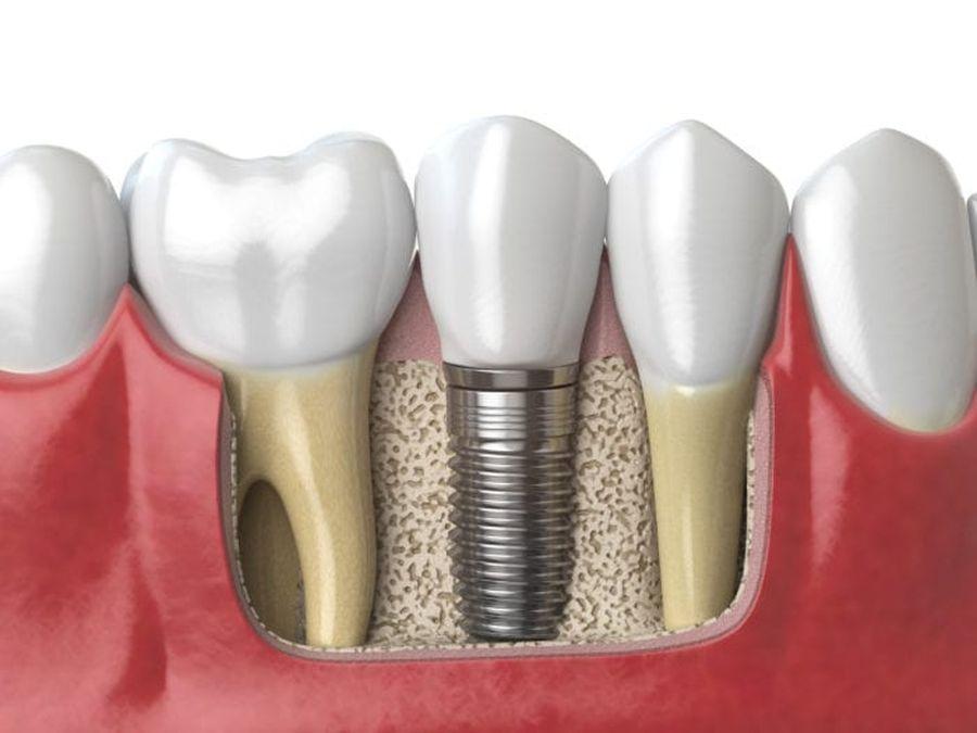 implanturi dentare Craiova