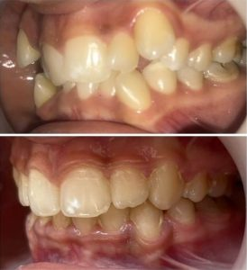 extractia dentara ortodontie