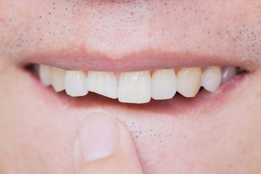 chirurgie orala Craiova