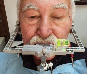 reabilitare totala cu implanturi dentare Craiova