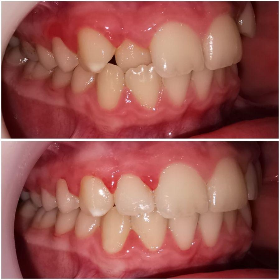 ortodontie Craiova - caz ortodontic complex