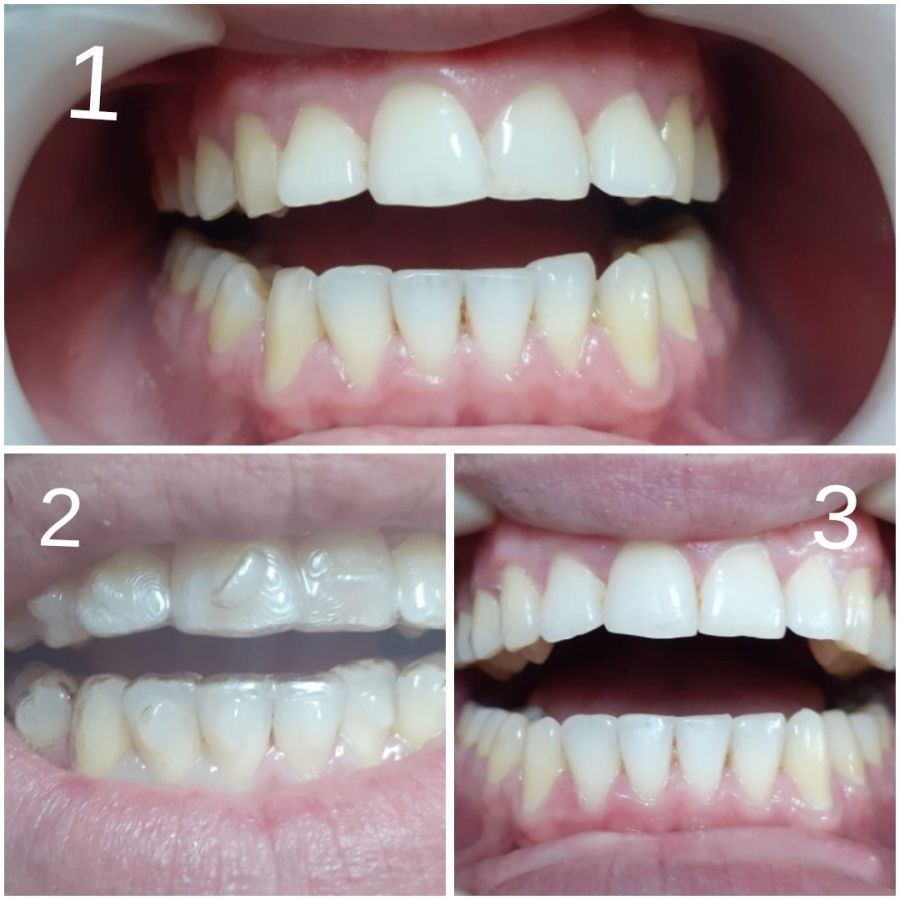caz ortodontic complet, aparat dentar invizibil