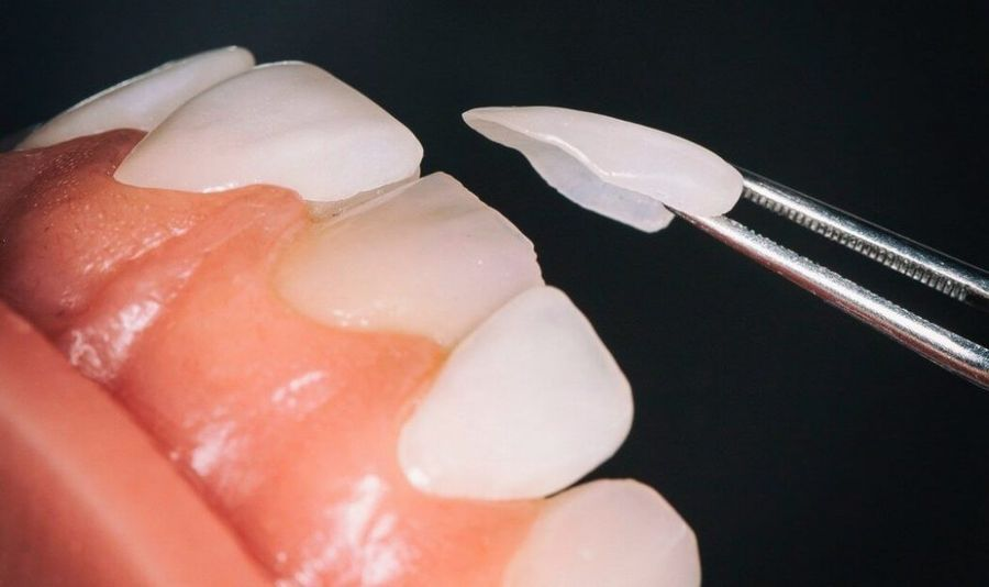 fatete dentare, estetica dentara Craiova