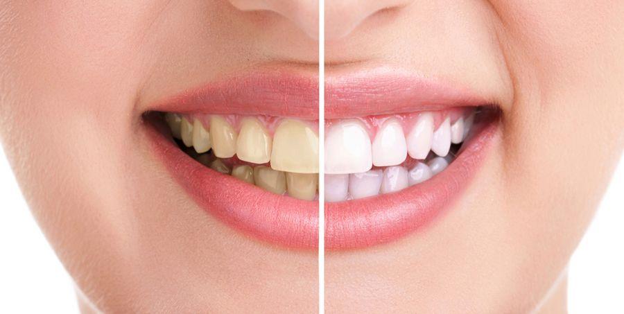 tratamente albire dentara Craiova