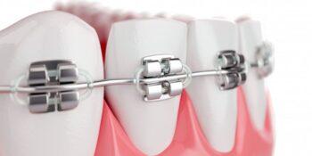 Ortodonție Craiova