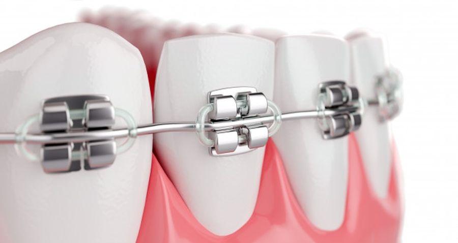 aparate dentare Craiova