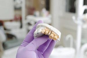 proteze dentare lucrari dentare Craiova