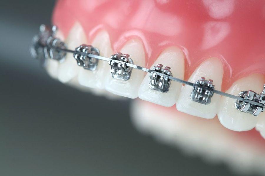 aparate dentare Craiova - ortodontie Craiova