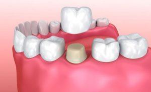 coroane dentare Craiova