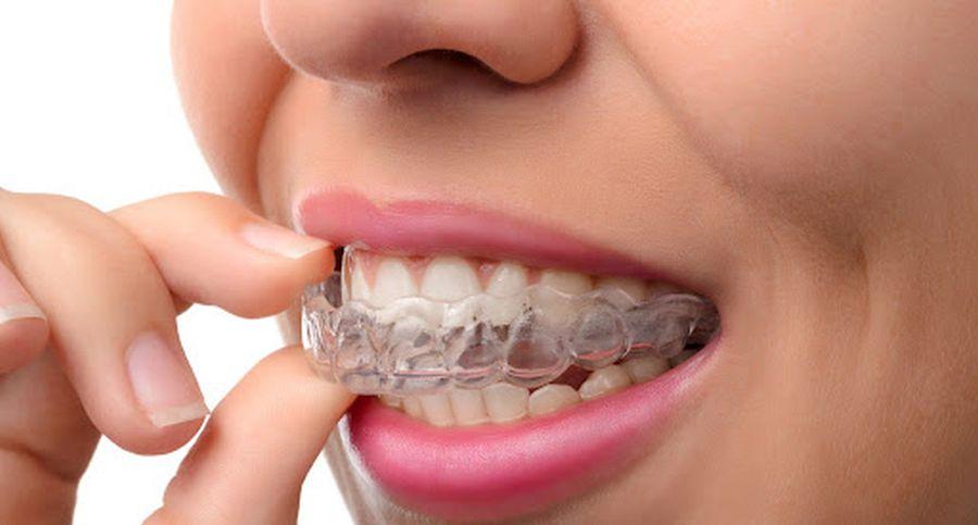 aparate dentare invizibile Craiova