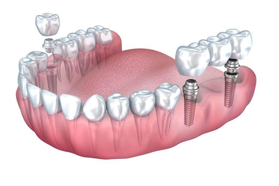 implanturi dentare Craiva