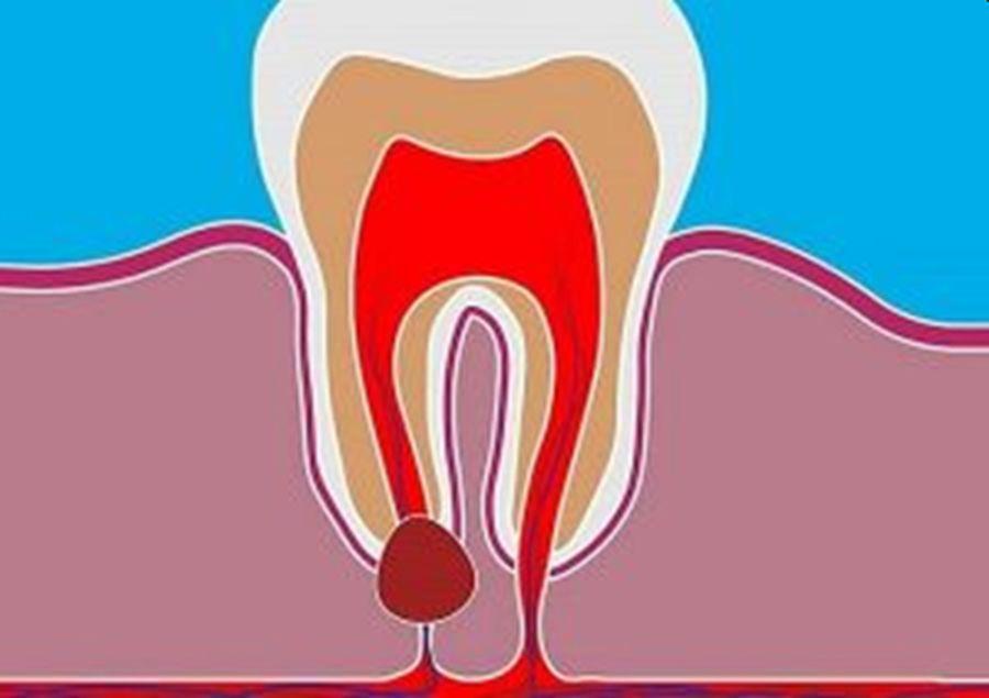chisturi dentare - chirurgie dento-alveolara Craiova