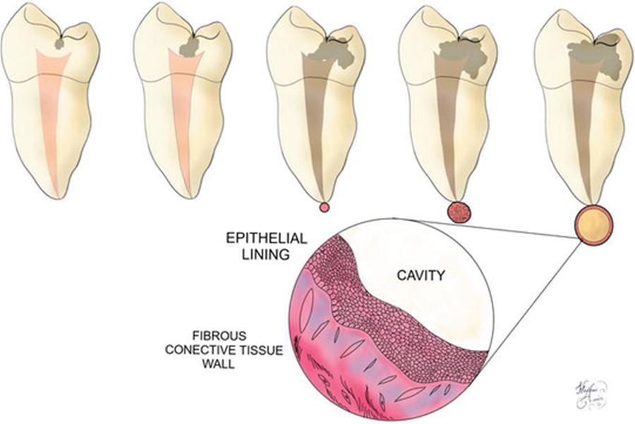 chisturi dentare - chirurgie orala Craiova